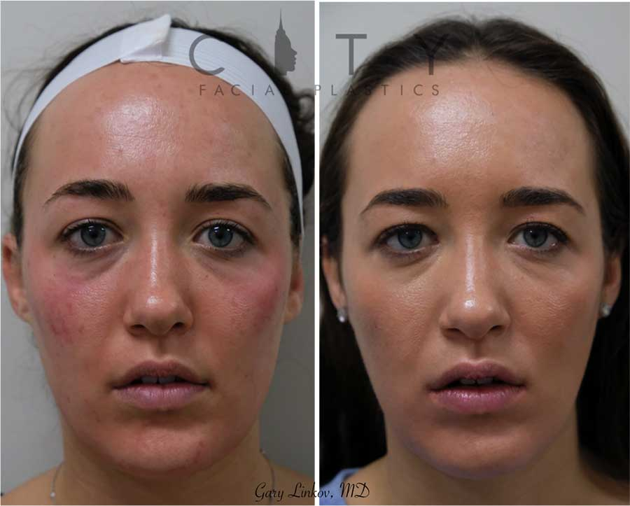 Botox was injected into the forehead, glabella, masseters, and upper lip. This resulted in a smooth forehead and in between the eyebrows, as well as a slimmer lower face and a slightly lifted upper lip. There is a lot one can do with botox.