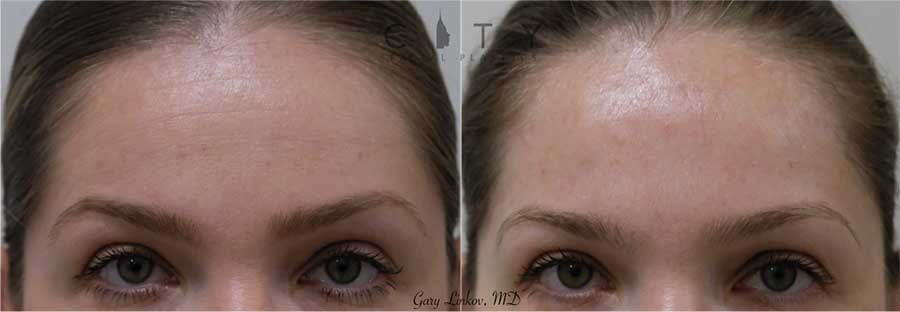 Botox placed into the forehead to smooth it out and give an overall refreshed look.
