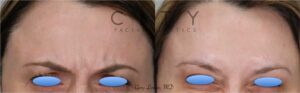 Botox placed into the forehead to smooth it out and give an overall refreshed look.She was then told by her colleagues how good she looked but they could not figure out what was done.