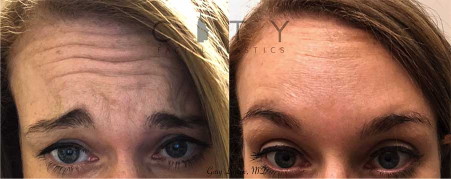 Botox was placed into the forehead to give a more youthful look. This patient had never had anything cosmetic done before and was very nervous, but after she saw the effects she was so delighted.