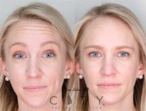 Botox was placed into the forehead for this young woman. She was happy to not have wrinkles every time she raised her eyebrows.