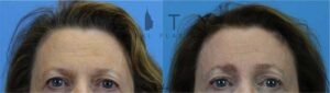 Endoscopic browlift. This kind woman underwent an endoscopic browlift with a few small incisions behind the hairline. This procedure helped reduce the amount of skin she later got removed from her upper eyelids and gave her the look she was hoping for.