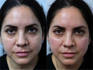 Cheek filler, with emphasis on the lateral cheek, was used to conservatively widen the upper cheeks to provide a natural lift for this lovely patient. No one leaves looking overdone.