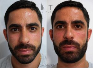 Cheek filler, with emphasis on the lateral cheek, was used to conservatively widen the upper cheeks to provide a more masculine look for this nice gentleman. A small amount of filler can go a long way.