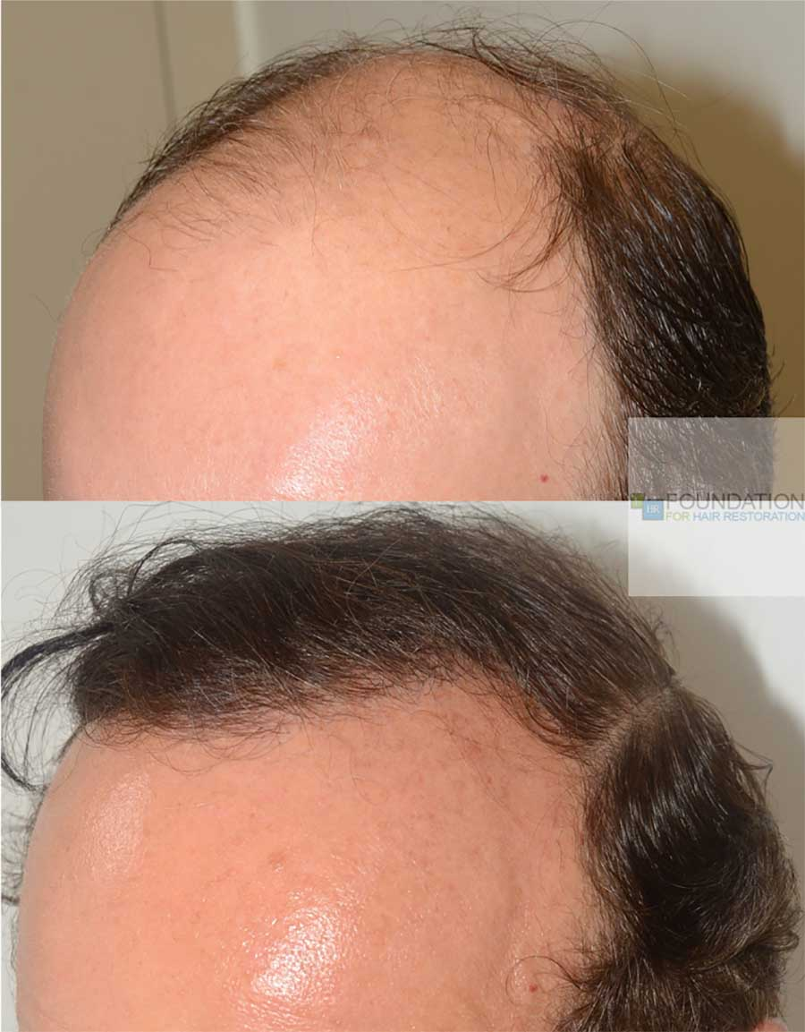 This gentleman had an incredible result with 2400 FUE grafts. It is very important to select the correct angulation and direction for the hairs in order to provide a natural appearance.