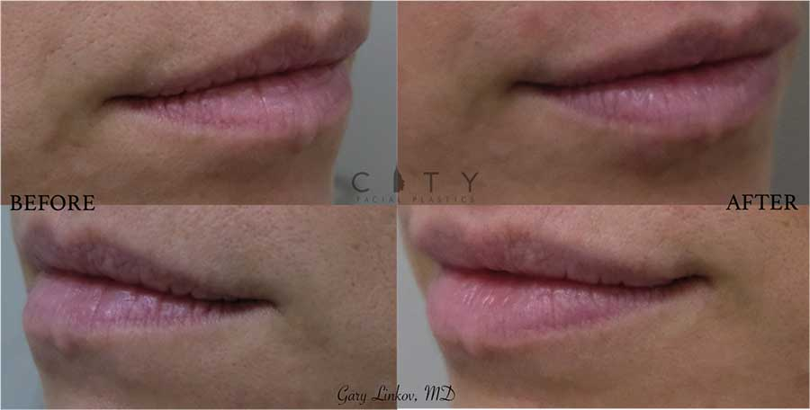 Lip filler was performed to give a more pronounced, subtle, elevated look for this young woman. She wanted to still look like herself but also more hydrated and healthy.