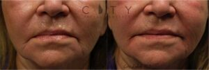 This kind woman was tired of having a constant frown. Quite a bit of filler was needed to lift the corners of her mouth and to turn that frown upside down.