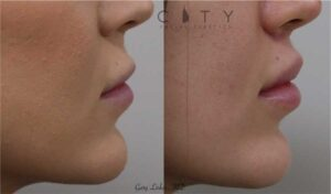 An elelyft lip lift was used for this model to reduce the height of the philtrum, roll out the upper lip, and show more upper teeth. The incision is well hidden at the base of the nose and does not distort the nostrils.