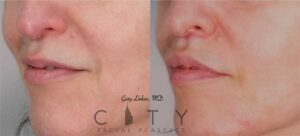 An elelyft lip lift was used for this beautiful woman to reduce the height of the philtrum, roll out the upper lip, and show more upper teeth. The incision is well hidden at the base of the nose and does not distort the nostrils.