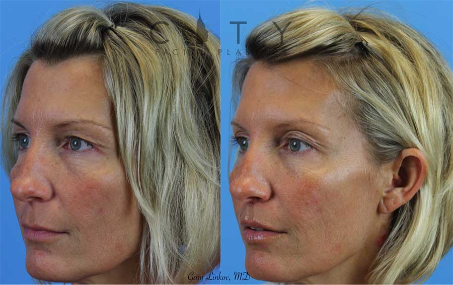 An elelyft lip lift was used for this amazing woman to reduce the height of the philtrum, roll out the upper lip, and show more upper teeth. The incision is well hidden at the base of the nose and does not distort the nostrils. Notice that before the procedure her bottom teeth can only be seen, after the procedure you can see the upper teeth quite nicely. Also note, that there is no impact on the smile, a common misconception.