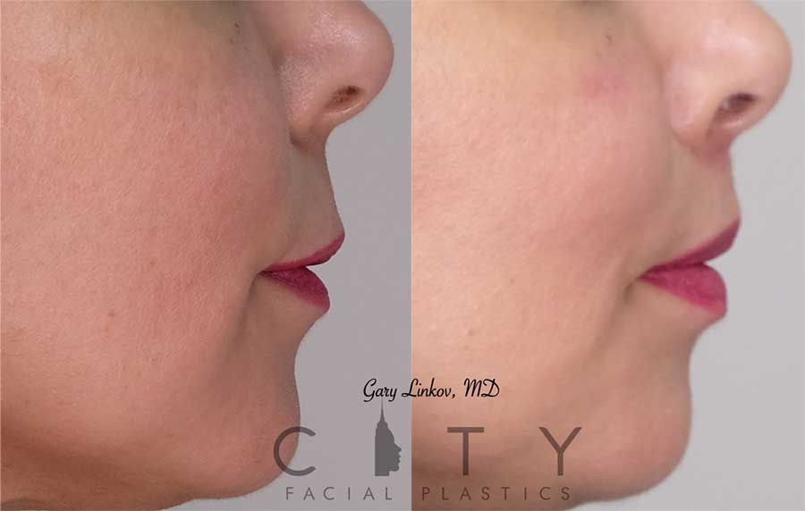 An elelyft lip lift was performed for this incredible woman. She wanted a permanent improvement to her upper lip and to decrease the philtral length. She looks rejuvenated and is very happy.