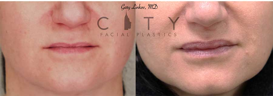 This gracious woman desired a fuller upper lip and so filler was used to carefully create her desired appearance, building volume in the body of the lip.