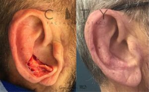 This kind gentleman was diagnosed with an external ear melanoma. After removal, it was reconstructed with a full thickness skin graft from behind the ear. It healed nicely and he was so happy not to be reminded of his cancer.