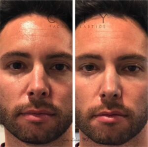 A non-surgical rhinoplasty was able to restore the contours to the left side of his nose. Being on camera, thisyoung man was bothered by the way light hit his nose. Not wanting a surgical solution, he opted for a quick filler injection to give him the look he wanted.