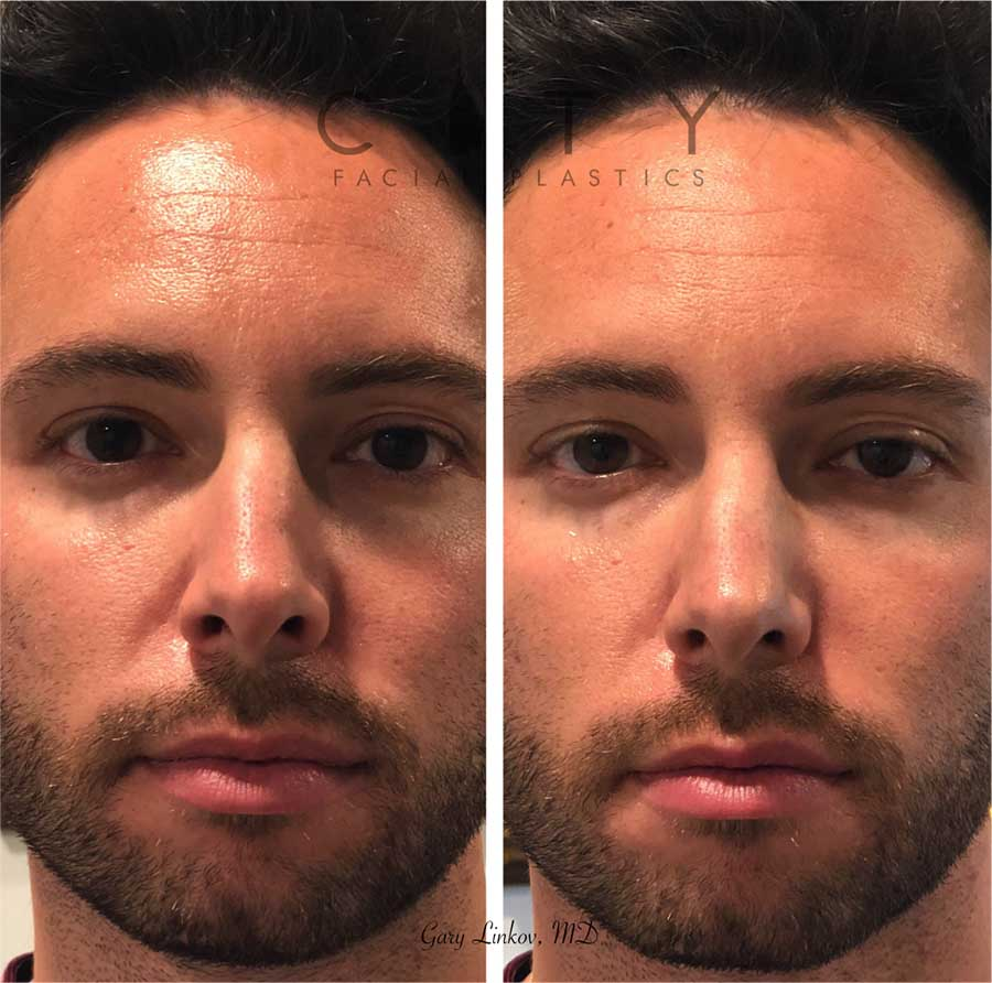 A non-surgical rhinoplasty was able to restore the contours to the left side of his nose. Being on camera, this young man was bothered by the way light hit his nose. Not wanting a surgical solution, he opted for a quick filler injection to give him the look he wanted.