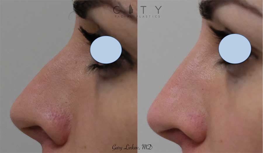 A non-surgical rhinoplasty nicely addressed the dorsum (bridge of the nose) in this young woman, making it more straight and uniform. It took a few minutes and was completely affordable.