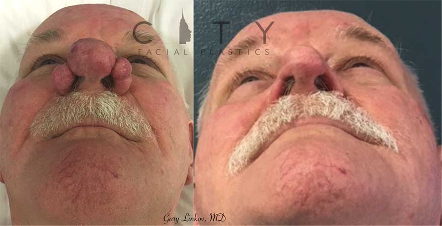 Rhinophyma excision with laser resurfacing.