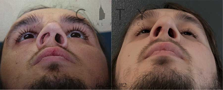 Functional and cosmetic rhinoplasty.
