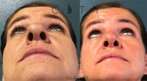 Cosmetic rhinoplasty performed for this kind woman who had a nasal skin cancer.