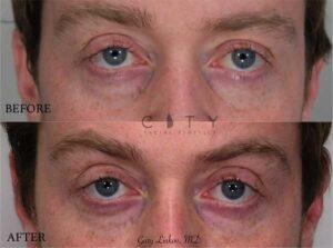 Tear trough filler was performed to give a more rejuvenated undereye appearance. This gentleman lives a busy life and wanted to look refreshed. Less than 1 syringe of Restylane was used.