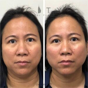 Mint threadlift was used to non-surgically create a natural, lifted neck and submental region. She did not want surgery and was very happy with the results of her non-surgical rejuvenation of the neck and jowls.
