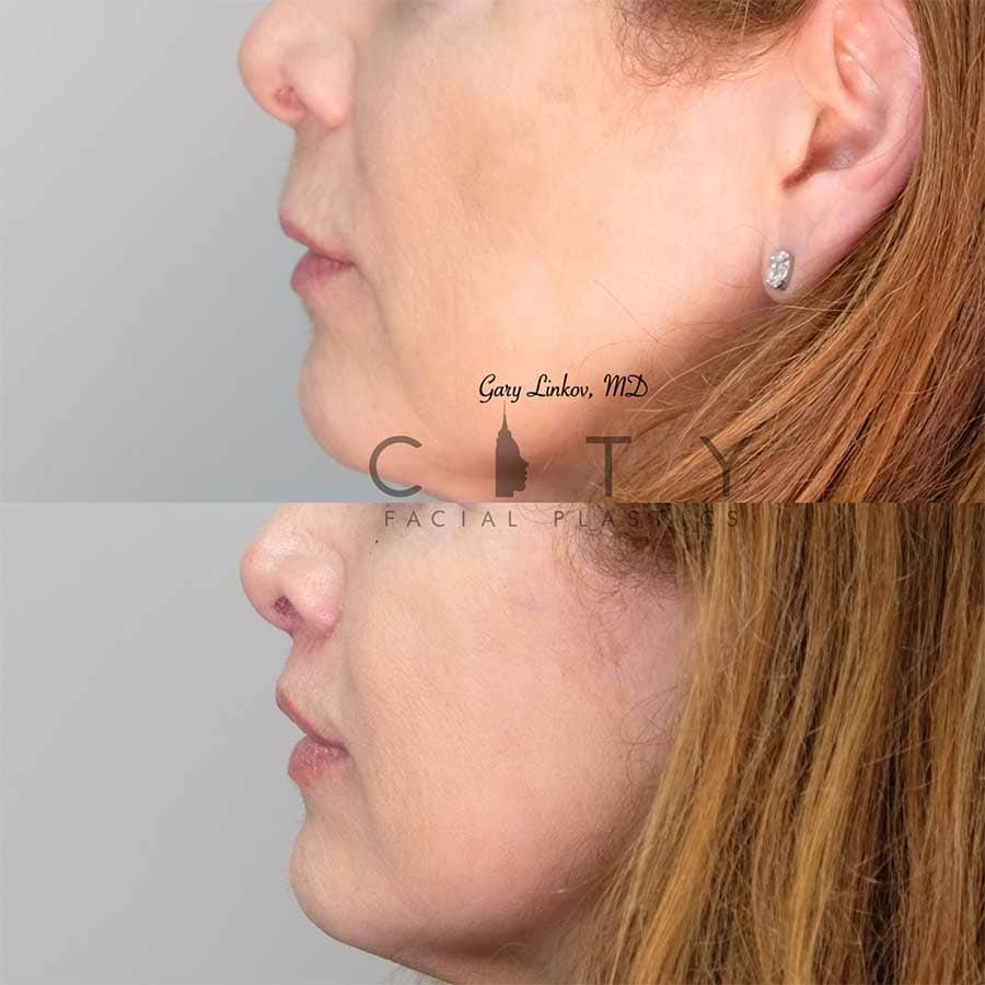 An elelyft lip lift left profile.