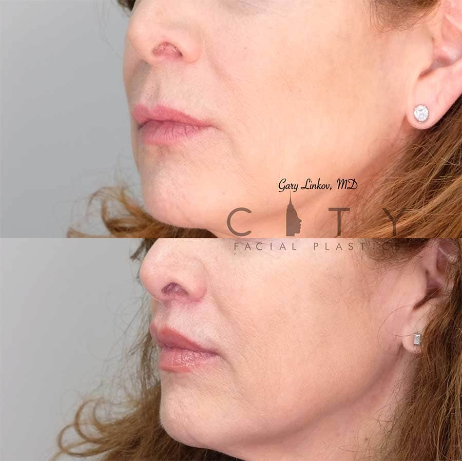 An elelyft lip lift left side of the face three quarter.