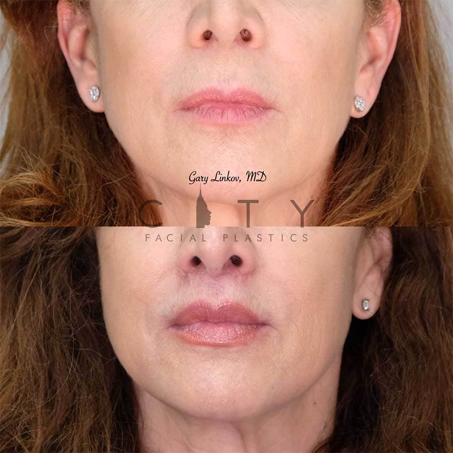 An elelyft lip lift frontal mouth closed.