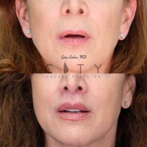 An elelyft lip lift frontal mouth open.
