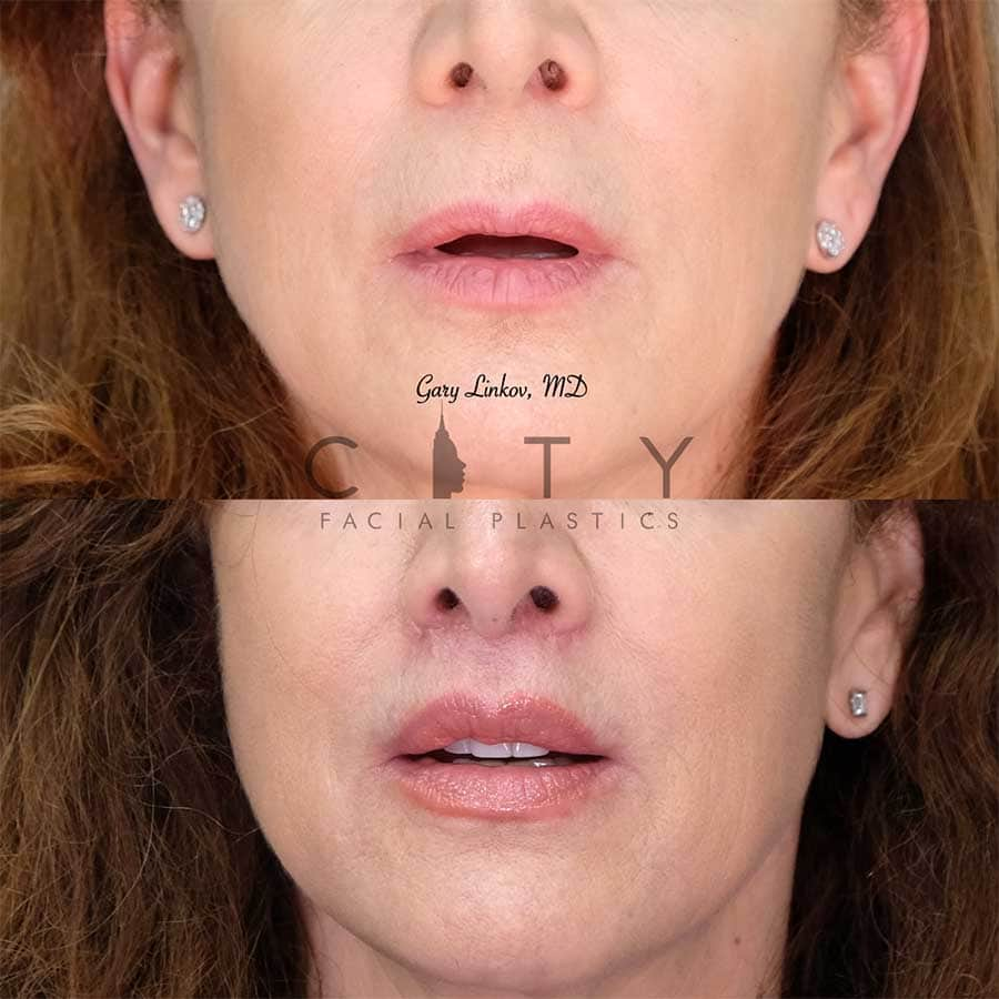 An elelyft lip lift frontal mouth open.