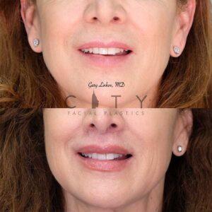 An elelyft lip lift frontal smile.