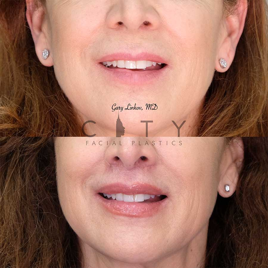 An elelyft lip lift frontal smile.