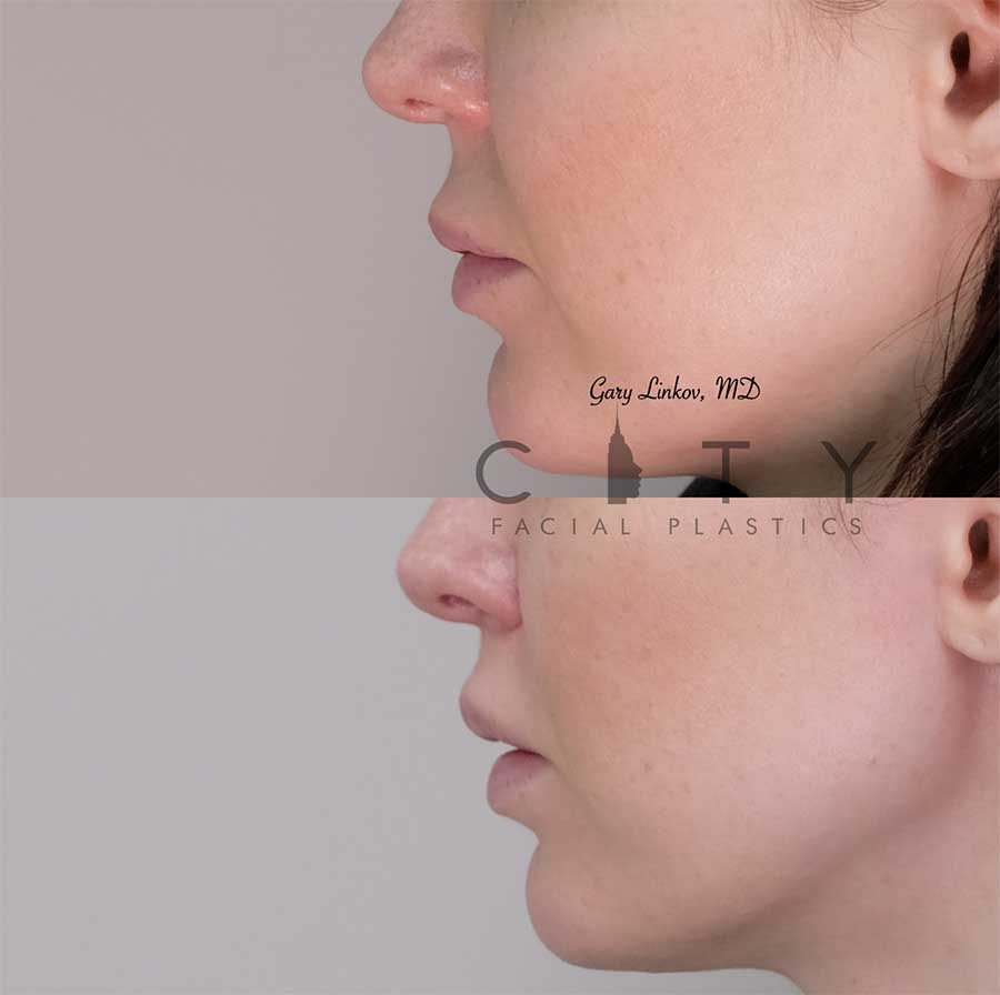 8 weeks status post elelyft lip lift - left profile.