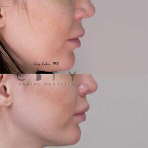8 weeks status post elelyft lip lift - right profile.
