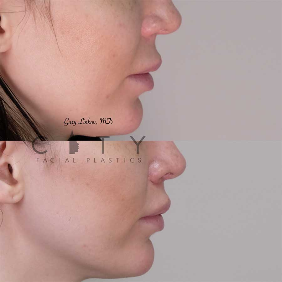 8 weeks status post elelyft lip lift - right profile.