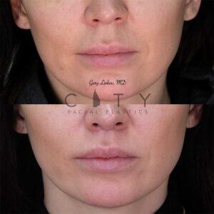 8 weeks status post elelyft lip lift - frontal mouth closed.