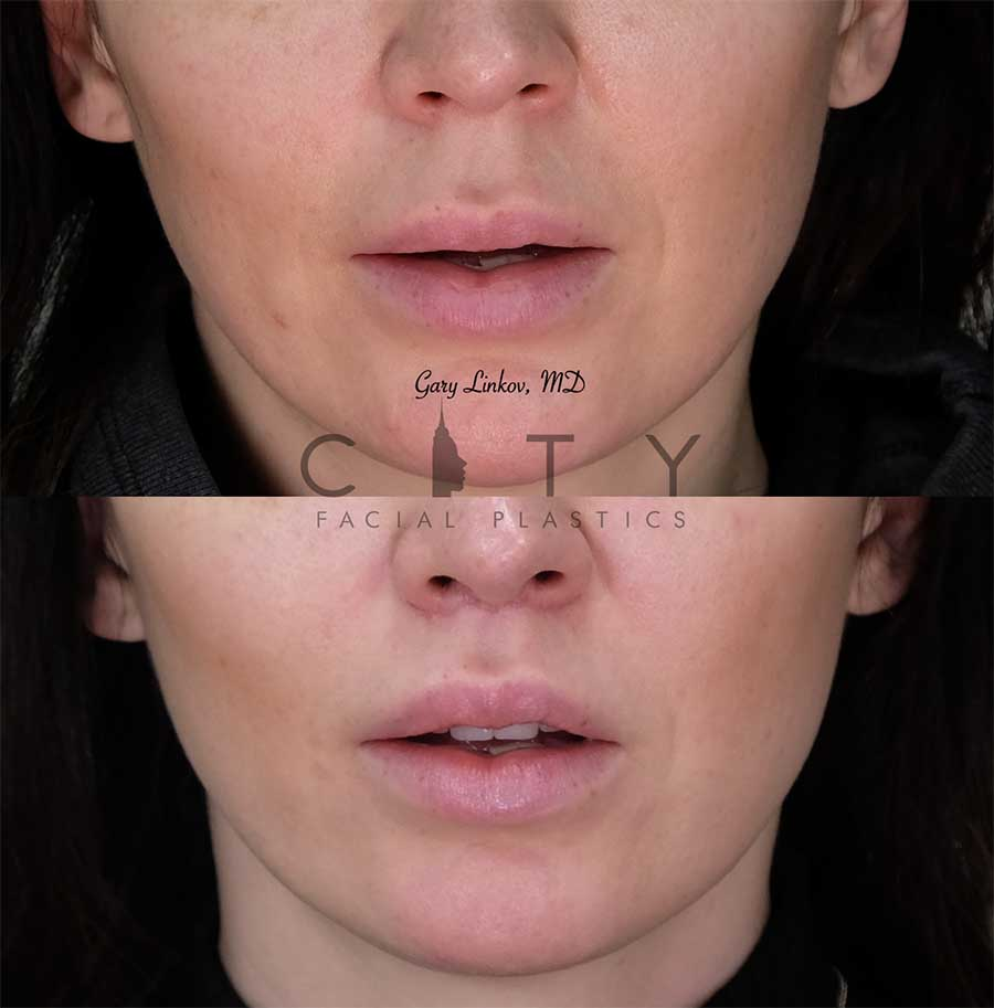 8 weeks status post elelyft lip lift - frontal mouth open.
