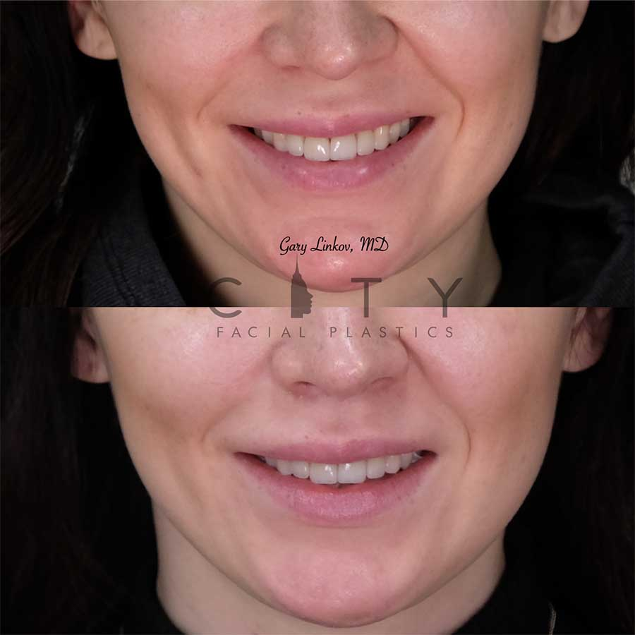 8 weeks status post elelyft lip lift - frontal smile.