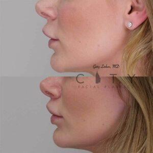 Lip lift 11 left profile.