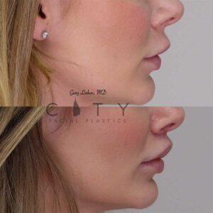 Lip lift 11 right profile.