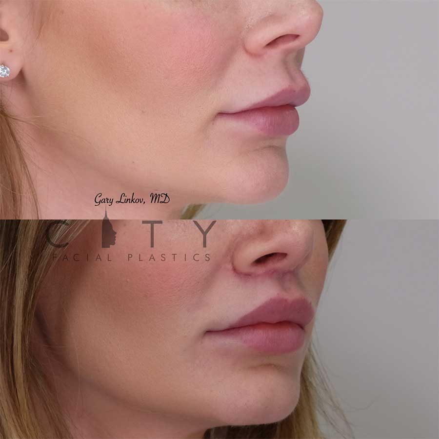 Lip lift 11 right profile.