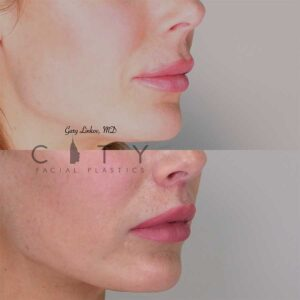 Lip lift 12 right three quarter profile photo.