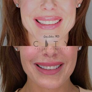 Lip lift 12 front photo - woman is smiling.