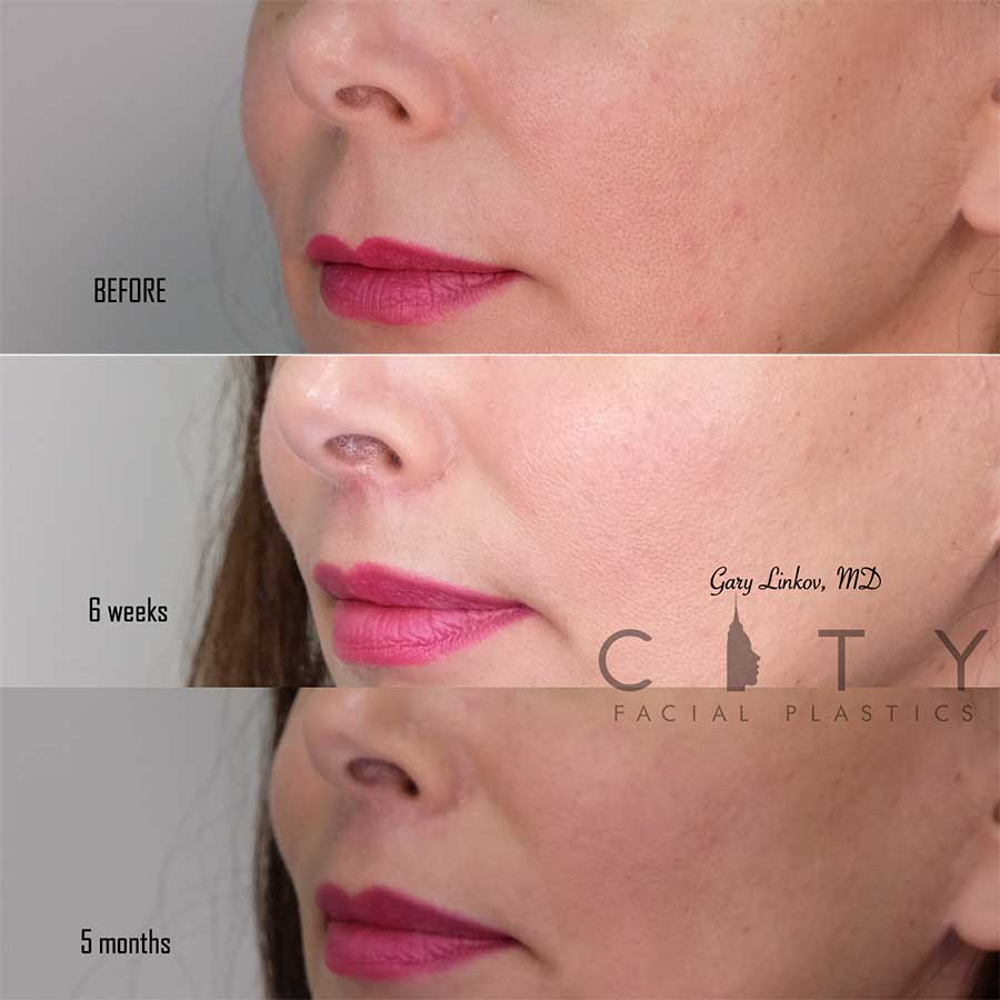 An elelyft lip lift left profile - 5 month follow up.