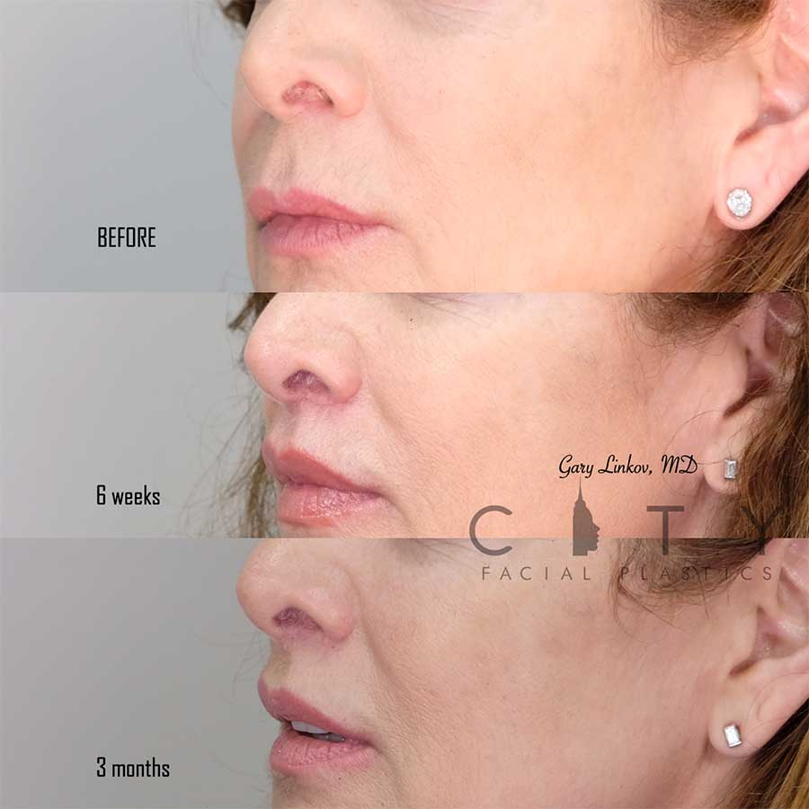 An elelyft lip lift left profile 3 month follow up.