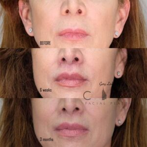 An elelyft lip lift frontal photo mouth closed 3 month follow up.