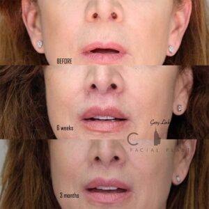 An elelyft lip lift frontal mouth open 3 month follow up.