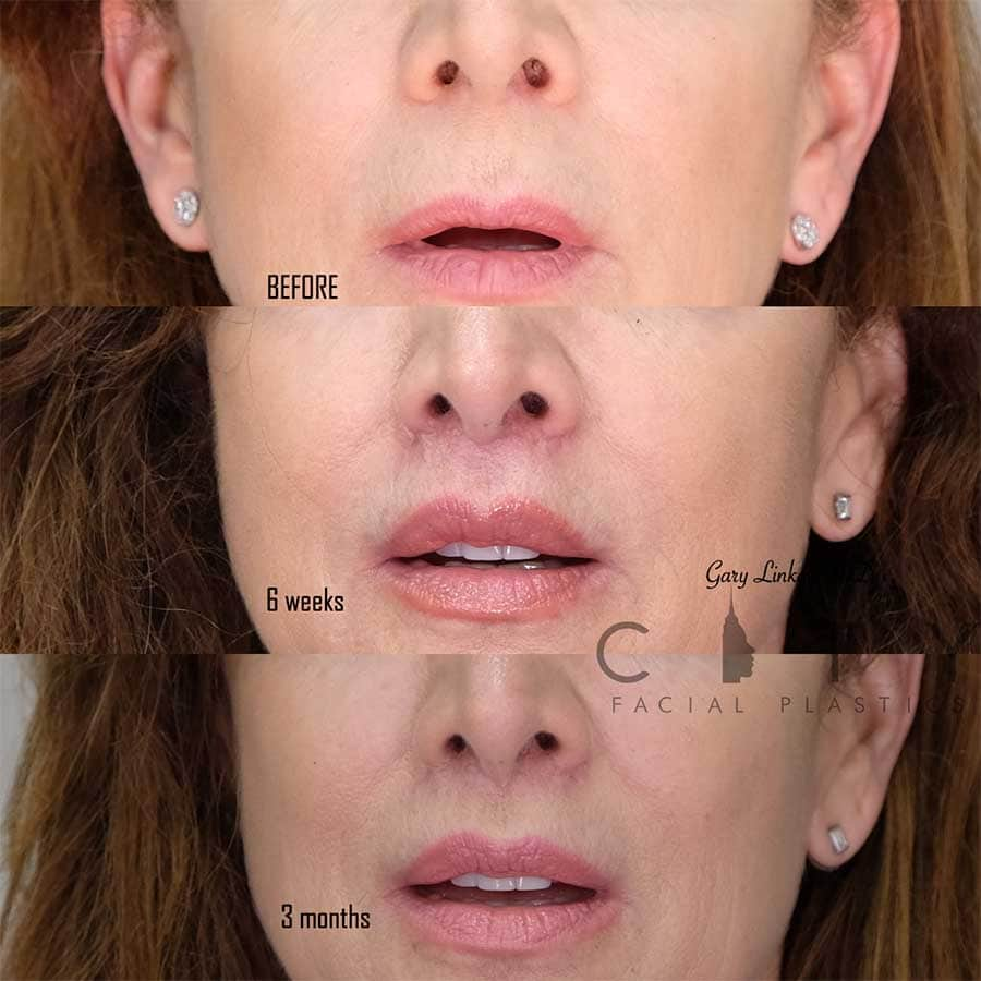 An elelyft lip lift frontal mouth open 3 month follow up.