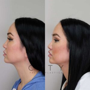 Lip Lift left profile.
