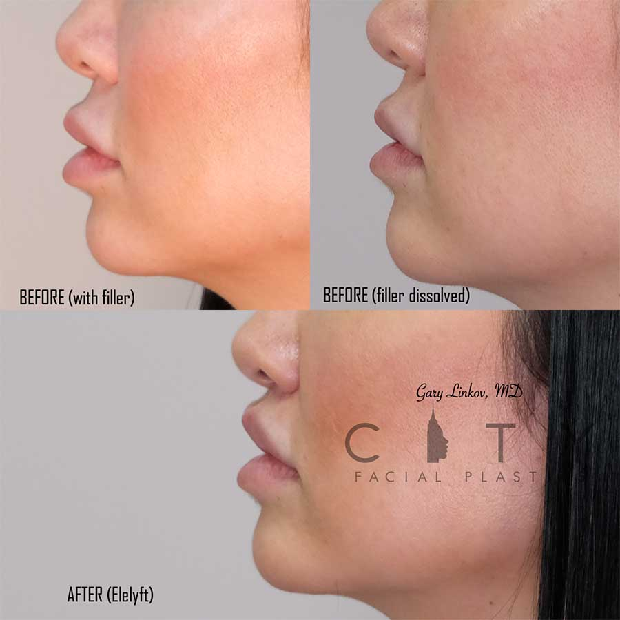 Lip Lift left profile with filler dissolved lift.
